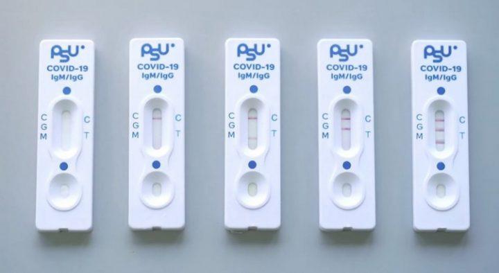 มหาวิทยาลัยสงขลานครินทร์ พัฒนาชุดตรวจคัดกรอง PSU COVID-19 Rapid Test